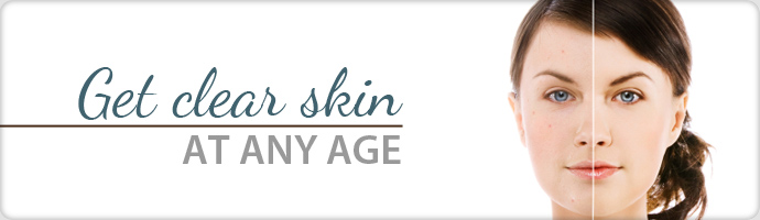 acne_banner
