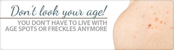 agespots_freckles_banner